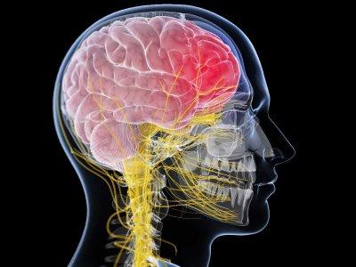 Ropień mózgu: jakie są jego przyczyny, objawy i jak go leczyć?