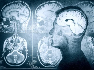 Badanie RTG w diagnozowaniu próchnicy