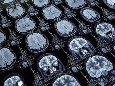 Najczęściej występujące następstwa udaru niedokrwiennego mózgu
