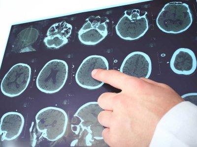 Prace nad nową metodą leczenia choroby Parkinsona i alternatywną drogą podawania leków
