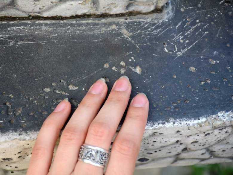 Grzybica paznokci - żółte paznokcie jako objaw choroby