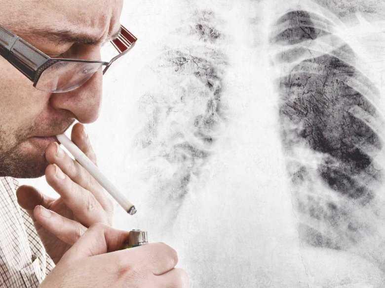 Wpływ palenia papierosów na płuca