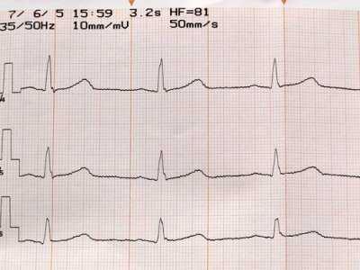 Prewencja pierwotna w chorobie niedokrwiennej serca