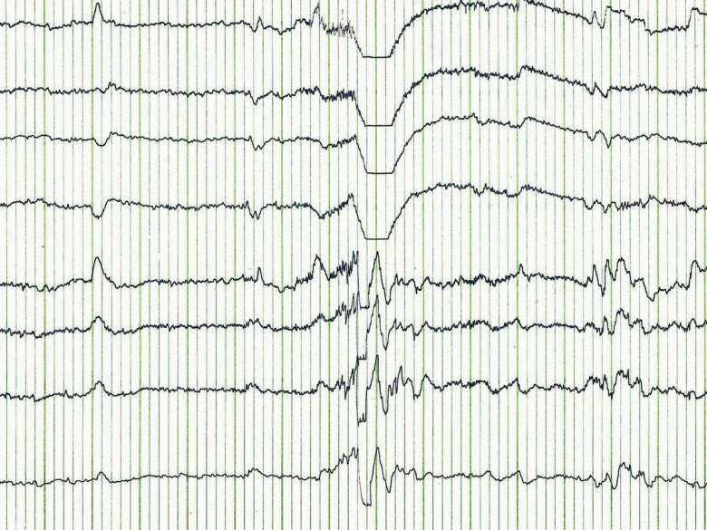 Charakterystyka metod neurotechnologicznych w praktyce medycznej