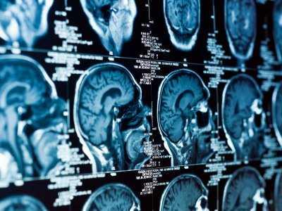 Guz przysadki mózgowej - objawy, diagnoza, leczenie
