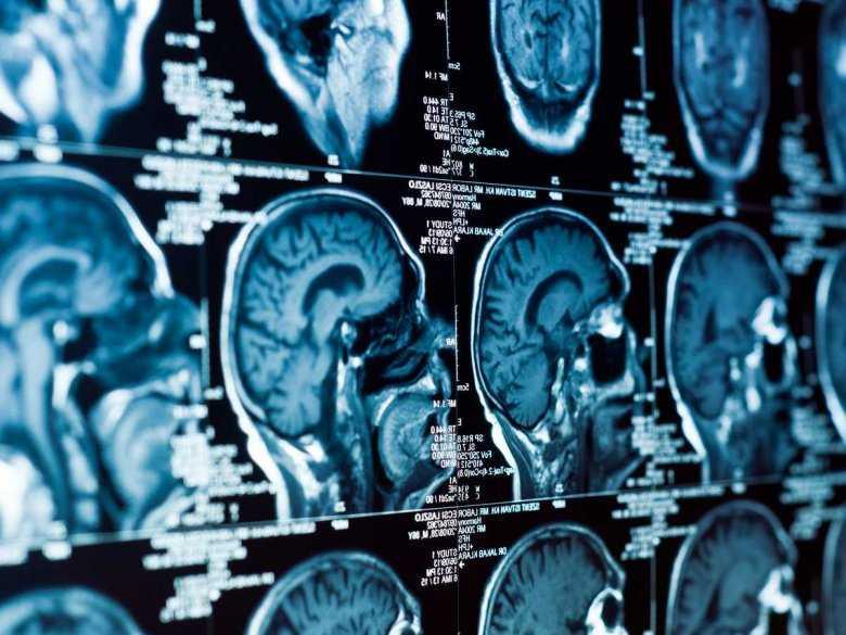 Diagnostyka choroby Alzheimera