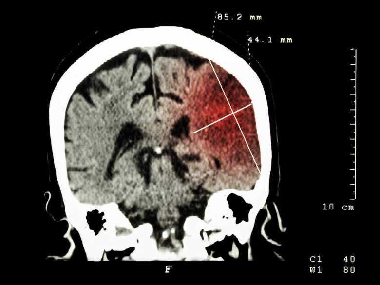 Zatrzymanie pracy serca u ciężarnych a podtrzymywanie funkcji życiowych po śmierci mózgu.