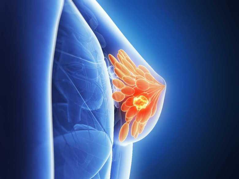 Mammodiagnostyka nową metodą wykrywania raka piersi