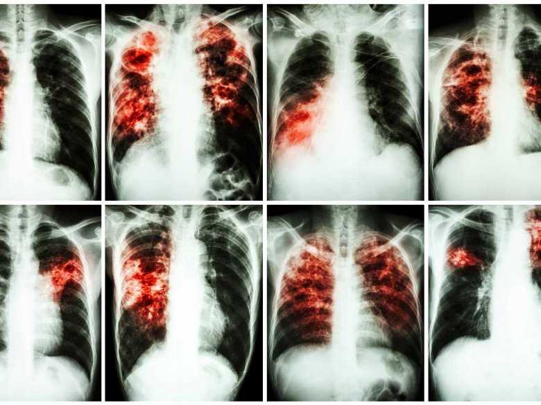 RTG chorobowo zmienionych płuc