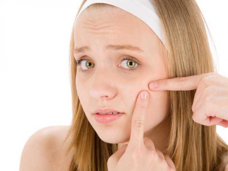 Rady dla dotkniętych trądzikiem młodzieńczym