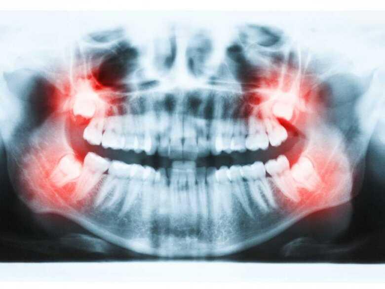 Prześwietlenie zębów