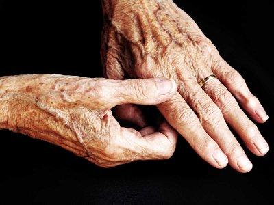 Stymulacja nerwu błędnego a leczenie RZS