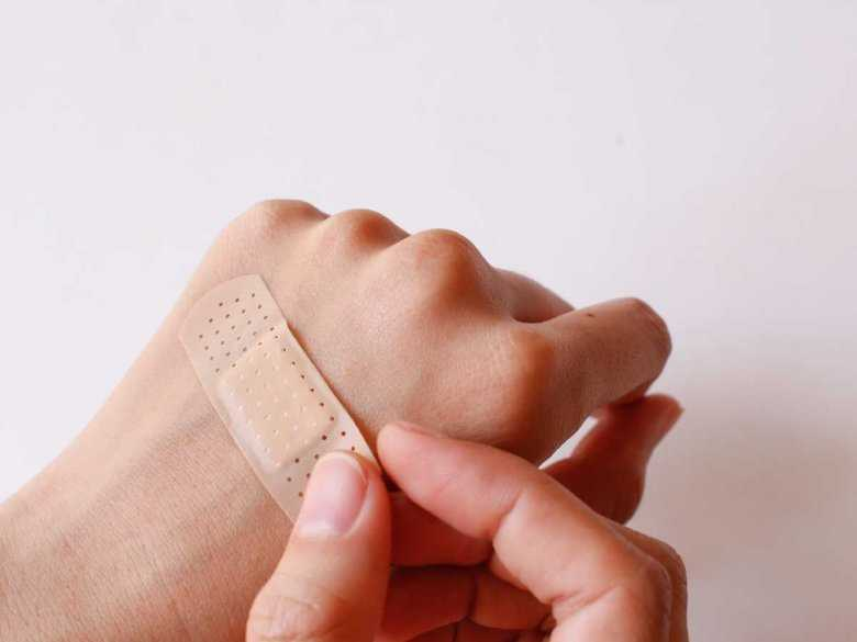 Skaleczenie na dłoni