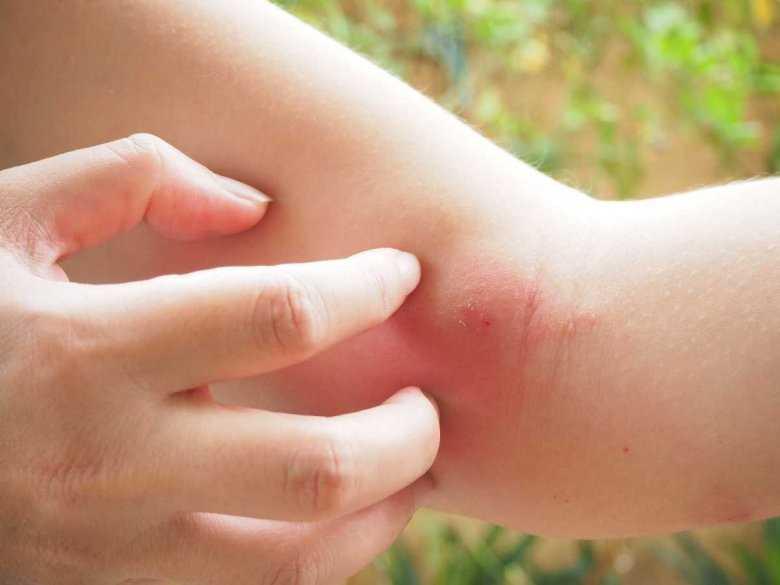 Alergie skórne: rodzaje
