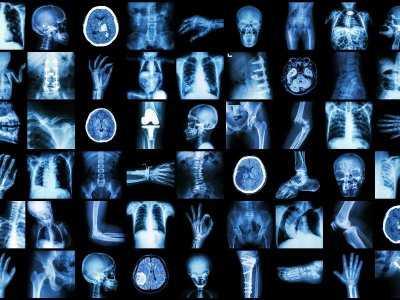 Uszkodzenie rentgenowskie skóry - objawy, diagnoza, leczenie