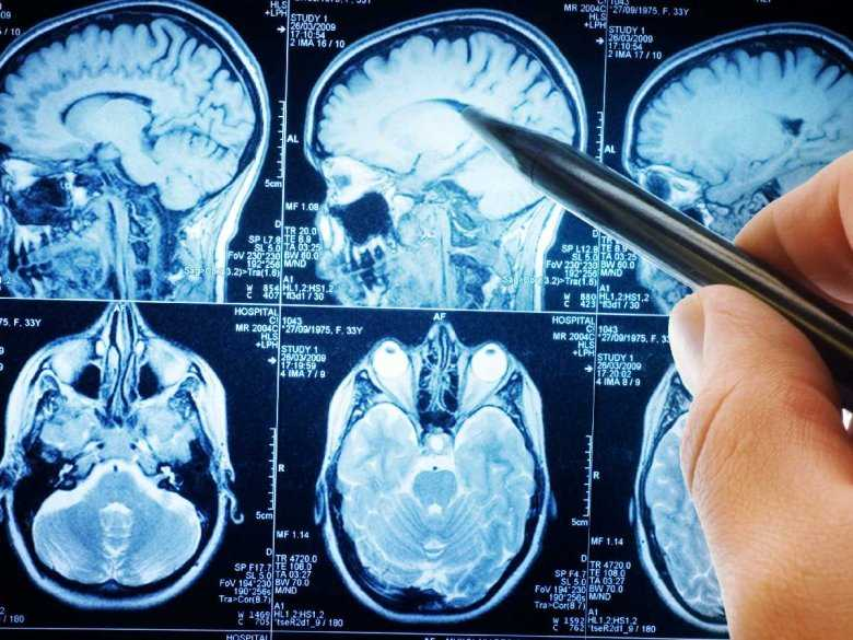 MRI, rezonans mózgu