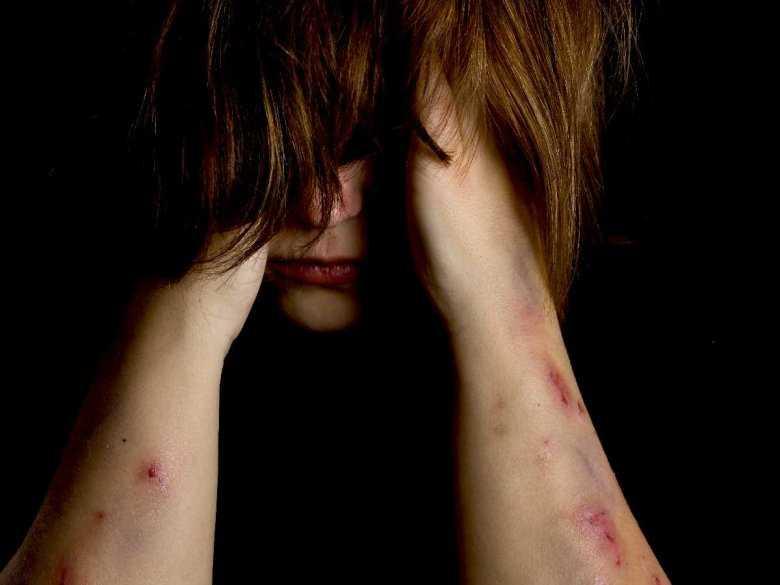 Samookaleczanie u dzieci: z jakich powodów dzieci zadają sobie rany?