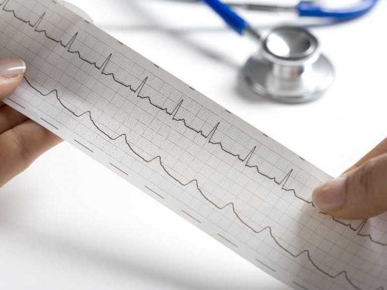 Przyczyny i objawy niedokrwistości serca