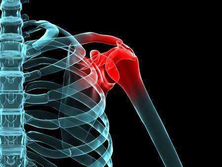 Zmiany miażdżycowe u kobiet z osteoporozą