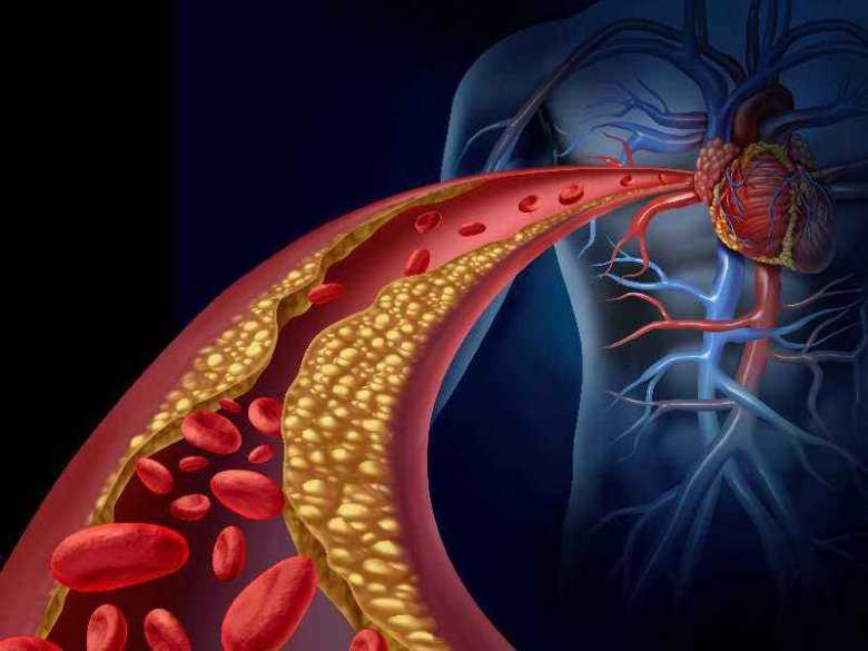 Zatkane tętnice