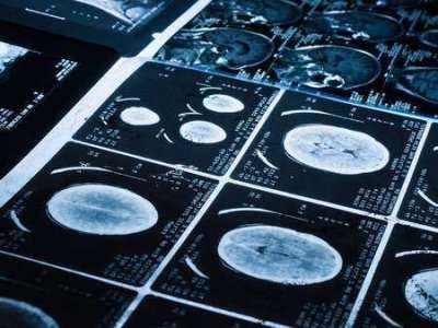 Neurobiologia wczesnych psychoz