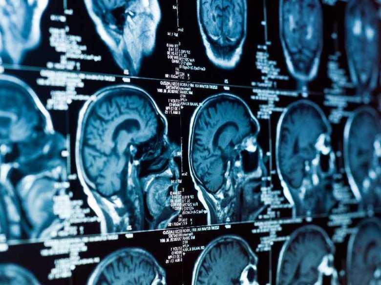 Zaskakujące zejście urazu głowy połączonego z pęknięciem torbieli pnia mózgu