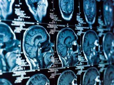 Guzy mózgu u kobiety ciężarnej .