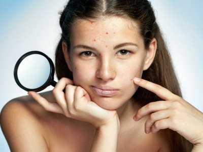 Farmakologiczne metody leczenia trądziku