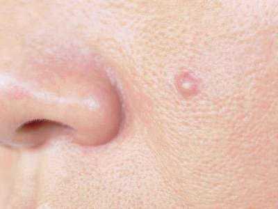 Symptomy dermatologiczne