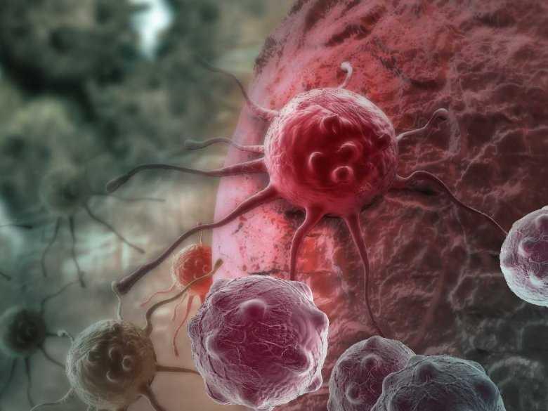 Agresywny rak trzustki i proteiny, które mogą promować jego zdolność do dawania przerzutów