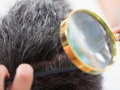Jakie mogą być przyczyny świądu skóry głowy?