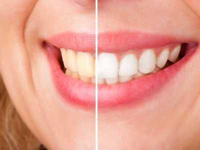 Domowe sposoby wybielania zębów