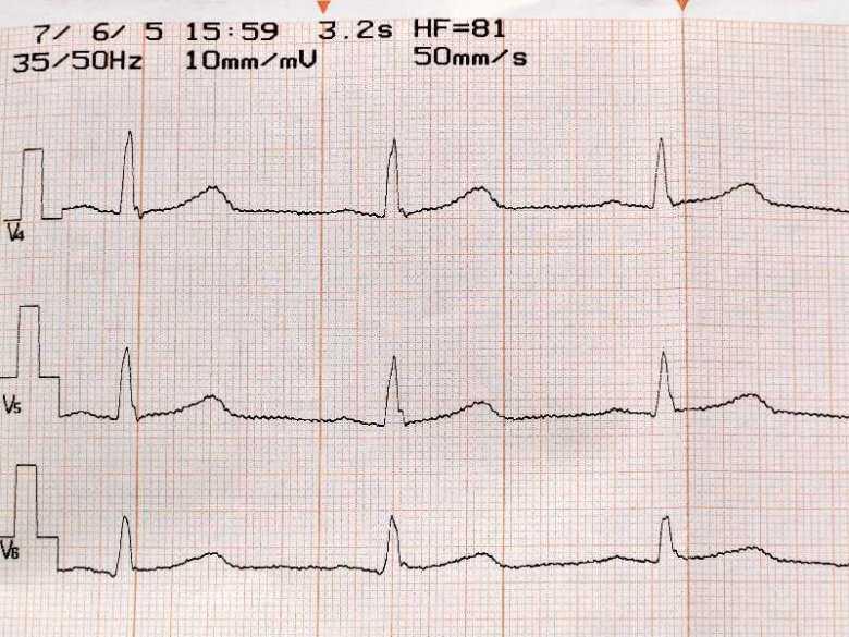 Zaburzenia rytmu serca - objawy, diagnoza, leczenie