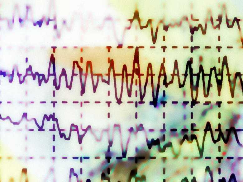 Kanałopatie - genetycznie uwarunkowane zespoły będące przyczyną zaburzeń rytmu serca
