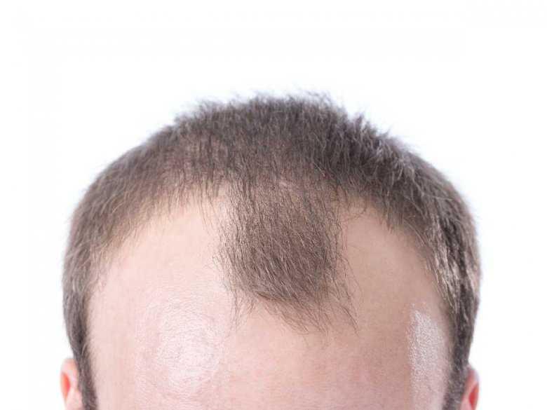 Czy zanieczyszczone powietrze może powodować łysienie?