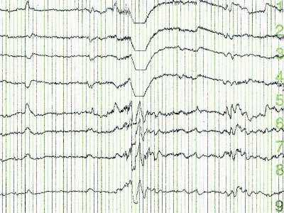 EEG biofeedback - nowa metoda terapeutyczna w psychiatrii