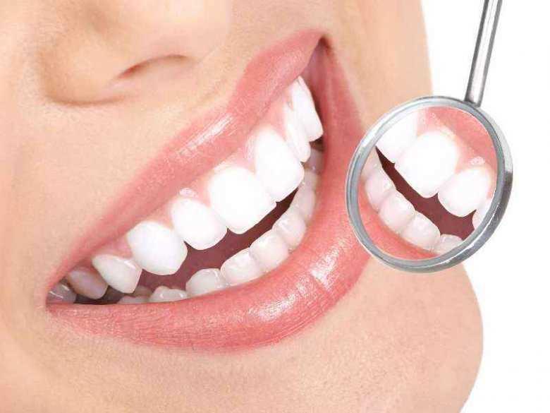 Na czym polega wybielanie zębów?
