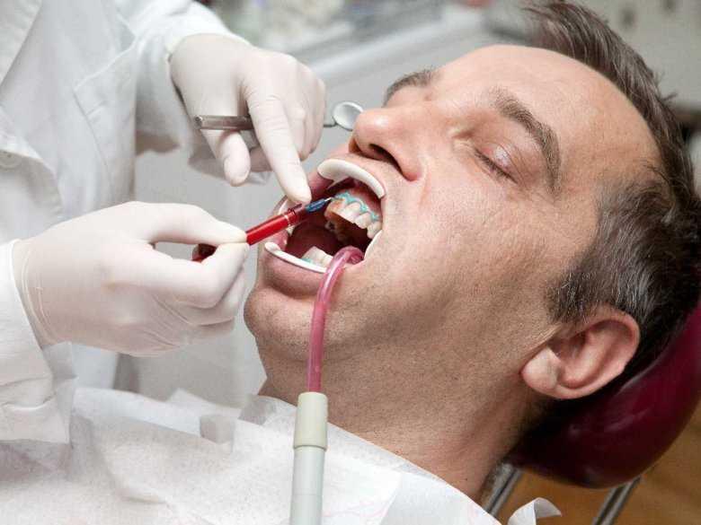 Chemiczne wybielanie zębów - czy jest bezpieczne?
