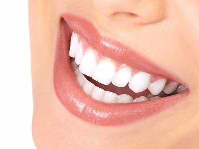Jak przygotować uśmiech na specjalną okazję?