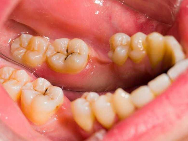 Operacja usunięcia zębów zatrzymanych