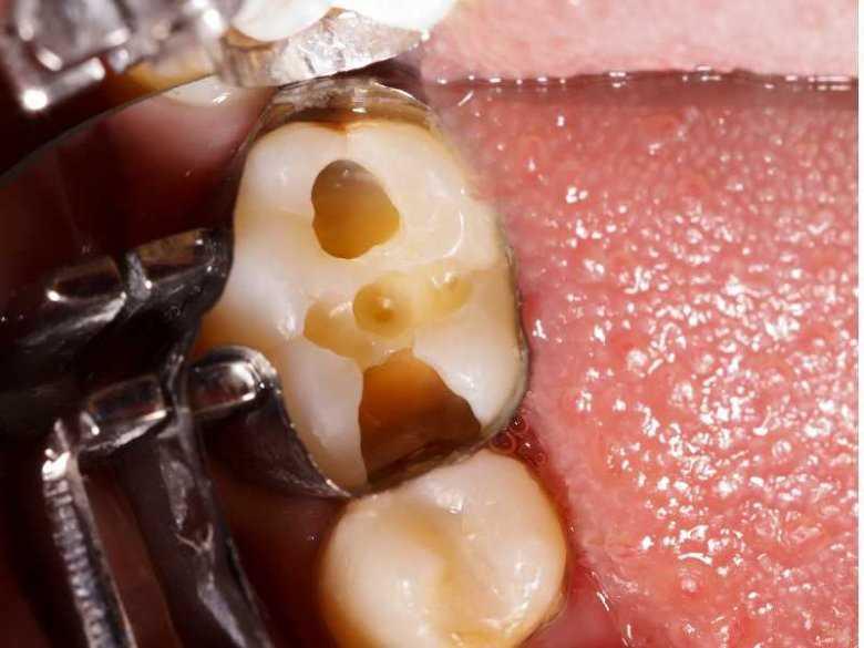 Próchnica zębów - objawy, diagnoza, leczenie