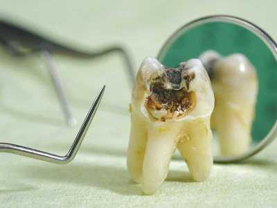 Zęby mleczne - co robić w przypadku ukruszenia, zwichnięcia bądź wybicia