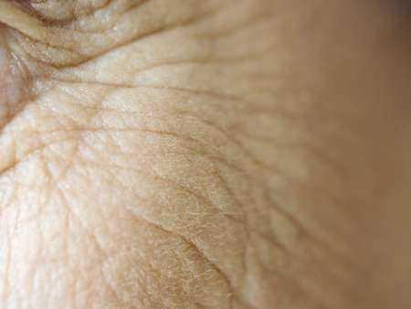 Mniejsza ilość zmarszczek i bardziej jędrna skóra są związane z wcześniejszym rozpoczęciem terapii estrogenowej.
