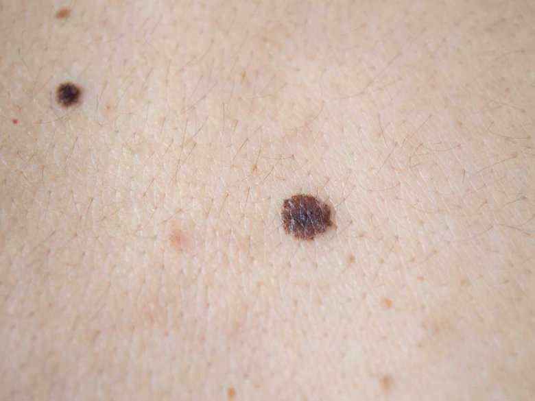 Zmiany na skórze – diagnostyka