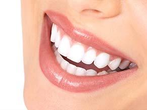 Wygląd zębów