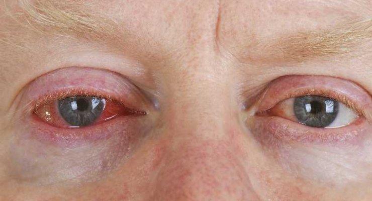 Długotrwałe zaczerwienienie oka i jego skutki