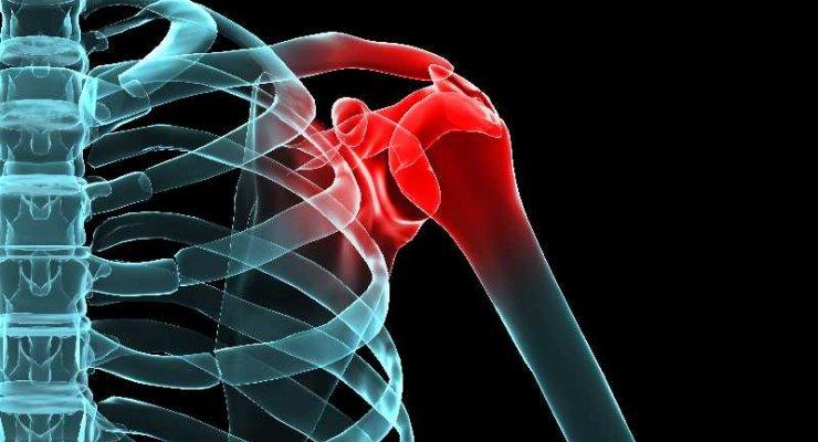 Nowotwór złośliwy kości