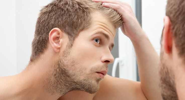 Łysienie androgenowe