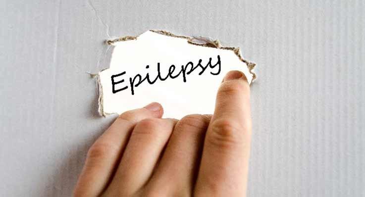 Czym jest epilepsja?