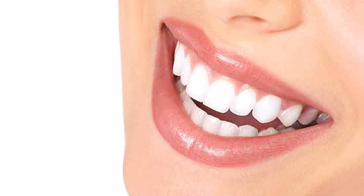 Jakie zęby robią sobie Polki?